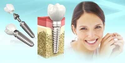 Где и как выбрать имплантанты зубов