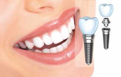 Почему шатаются зубы. Имплантация и протезирование зубов